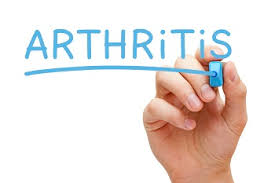 Worried about Arthritis?